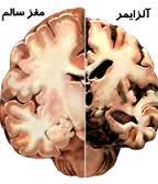 دانلود مقاله درمورد آلزایمر