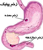 دانلود دانلود پاورپوینت زخم پپتیک peptic ulcer
